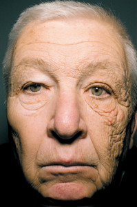 This truck driver shows the damage caused by UVA exposure to the side of his face exposed to the driver's side window (glass), which  does not reflect UVA rays.