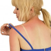 Easy Tips for Sunburn Relief