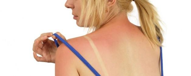 Easy Tips for Sunburn Relief